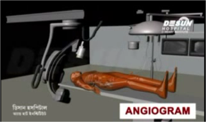Angiogram Video