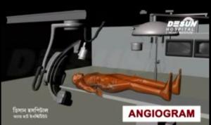 Angiogram Video