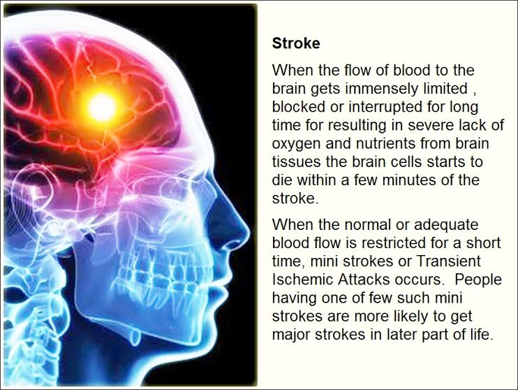 medical term stroke A stroke is a medical emergency prompt treatment is crucial early action can minimize brain damage and potential complications  slower acting warfarin may be used over a longer term warfarin is a powerful blood-thinning drug, so you'll need to take it exactly as directed and watch for side effects your doctor may prescribe these drugs.