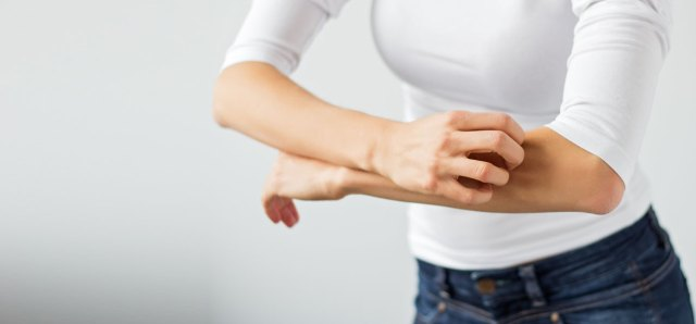 10-Effective-Home-Remedies-To-Treat-Skin-Allergies1